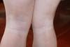 腿部患发白癜风的症状有哪些呢