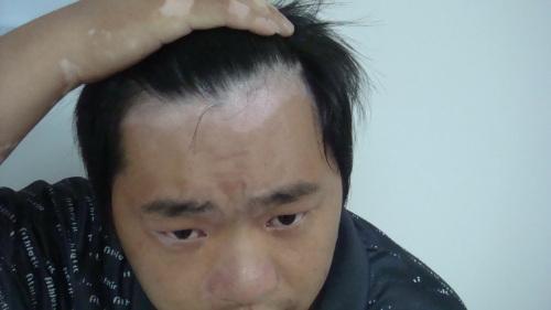 男性患上白癜风会有哪些危害